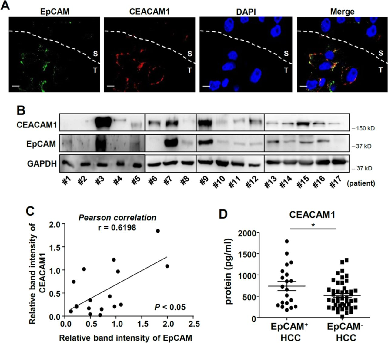 Epcam High Liver Cancer Stem Cells Resist Natural Killer Cell Mediated Cytotoxicity By Upregulating Ceacam1 Journal For Immunotherapy Of Cancer
